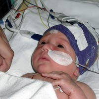 Julia, now an 11-year-old child who suffered a brain infarct as a newborn. Photo: Annabel Jeuring.