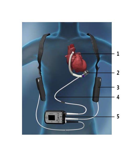Onderdelen van het steunhart in en rond het lichaam
